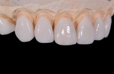 Порцелянові зуби (коронки): виготовлення, переваги і недоліки у використанні