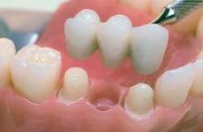 Металопластмасова коронки: сильні та слабкі сторони імплантатів