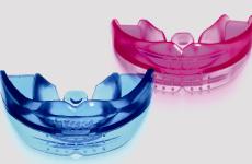 Трейнери для зубів: види, переваги і показання до використання