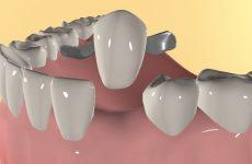 Протезування без обточування зубів: показання до проведення, різновиди процедури