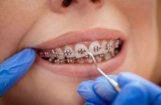 Догляд за брекетами: методи очистки, вибір засобів, рекомендації стоматологів