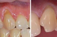 Клиновидний дефект зуба: причини, різновиди і методи лікування