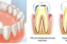 Який лікар ставить коронки на зуби в стоматологічних клініках?