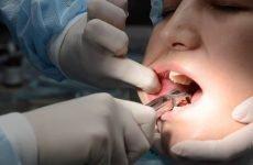 Антибіотики після видалення зуба мудрості: опис препаратів та правила прийому