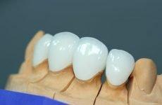 Керамічні зуби: різновиди, показання до імплантації, відгуки