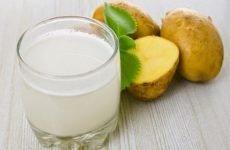 Чи можна пити картопляний сік при лікуванні виразки шлунка?