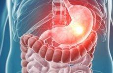 Німа виразка шлунка: симптоми, лікування, причини