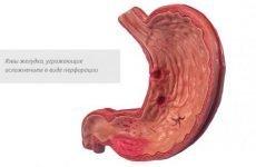 Симптоми виразки шлунка та правила її лікування