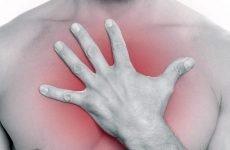 Печія на голодний шлунок: причини, лікування, профілактика