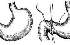 Проривна виразка шлунка: симптоми, операція, лікування