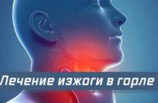 Печія в горлі: від чого виникає і способи усунення