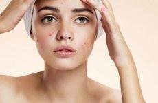 Шкіра при гастриті: чому з'являються проблеми, що зробити