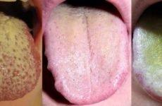 Жовтий наліт на язиці у дорослих: причини, симптоми і способи лікування