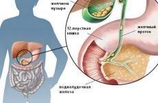 Гастрит і холецистит: лікування, дієта, діагностика