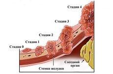 Рак шлунка 3 ступеня: прогноз, як лікувати, симптоми