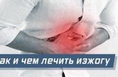 Печія, причини й лікування в домашніх умовах