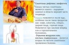 ГЕРХ з езофагітом: причини гастроезофагеального рефлюксу, симптоми, лікування