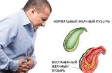Дієта при гострому холециститі: лікувальне харчування, що можна їсти