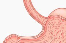 Вогнищевий гастрит: лікування, харчування, симптоми і ускладнення