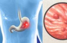 Зернистий гастрит: лікування, діагностика, причини