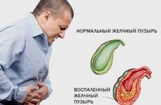 Дієта при хронічному холециститі: меню харчування на тиждень, що можна їсти