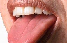 Мова при гастриті: зміни, як проходить лікування