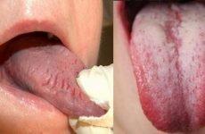Болить язик: причини, місця локалізації болю і методи лікування