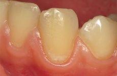 Як зміцнити емаль зубів: ефективні методи та засоби