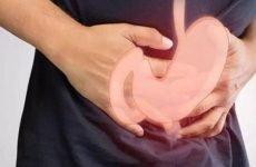 Фіброз шлунка: лікування, профілактика, діагностика