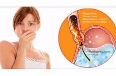 Запах з рота від шлунка: лікування, як позбутися поганого дихання, причини