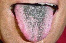 Чорний наліт на язиці: причини і методи лікування