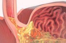 Закидання шлункового соку в стравохід: лікування, причини, симптоми