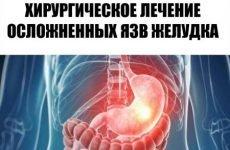 Коли необхідна операція при діагностиці виразки шлунка?