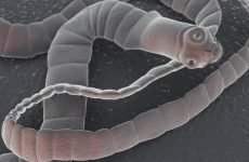 Title: Солитерный черв'як в людському організмі: як зрозуміти і позбутися