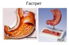 Чим небезпечний виразковий гастрит і як правильно його лікувати?