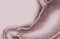 Еритематозний гастрит: лікування, дієта, діагностика