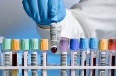 Аналізи при болях у шлунку: крові, калу та сечі