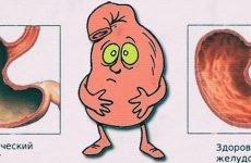 Атрофічний гастрит: лікування, симптоми, прогноз