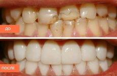 Вініри на зуби: різновиди, установка, переваги і недоліки