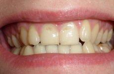 Ерозія емалі зубів: причини, методи діагностики та лікування