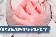 Як вилікувати печію в домашніх умовах назавжди народними засобами
