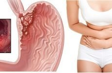 Шишка в шлунку: лікування, причини, симптоми і види