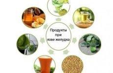 Які продукти входять в дієту №1 при виразці шлунка і що з них приготувати?