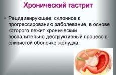 Дієта при хронічному гастриті: що можна і не можна їсти, харчування при загостренні