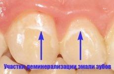 Демінералізація емалі: причини, симптоми і методи лікування