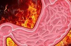 Пече в шлунку: причини, як лікувати, діагностика