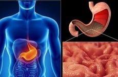 Симптоми гастриту шлунка та основні методи його лікування