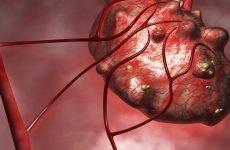 Метастази при раку шлунка: симптоми, прогноз