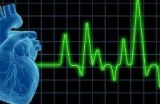 Аритмія серця-за шлунка: причини, симптоми