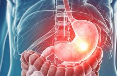 Вогнищевий поверхневий гастрит: лікування, причини